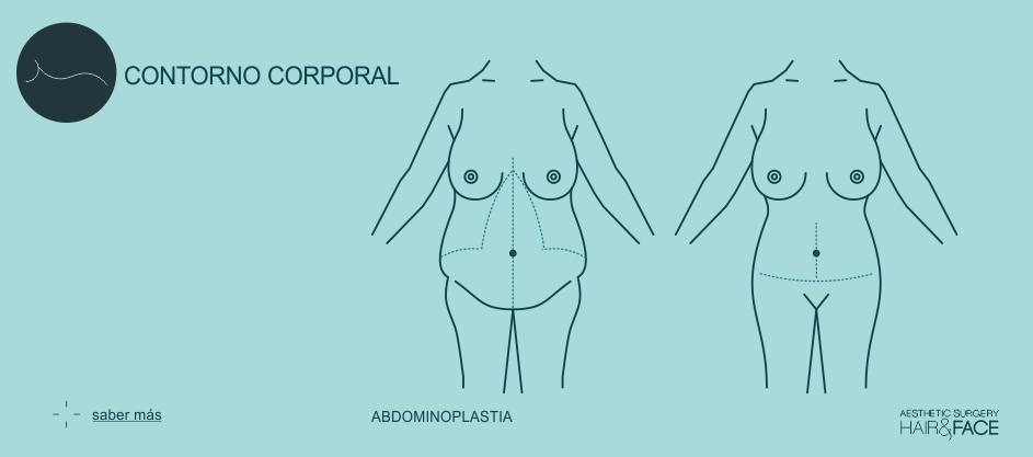 Saber más sobre abdominoplastia...