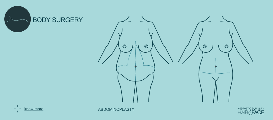Know more about abdominoplasty