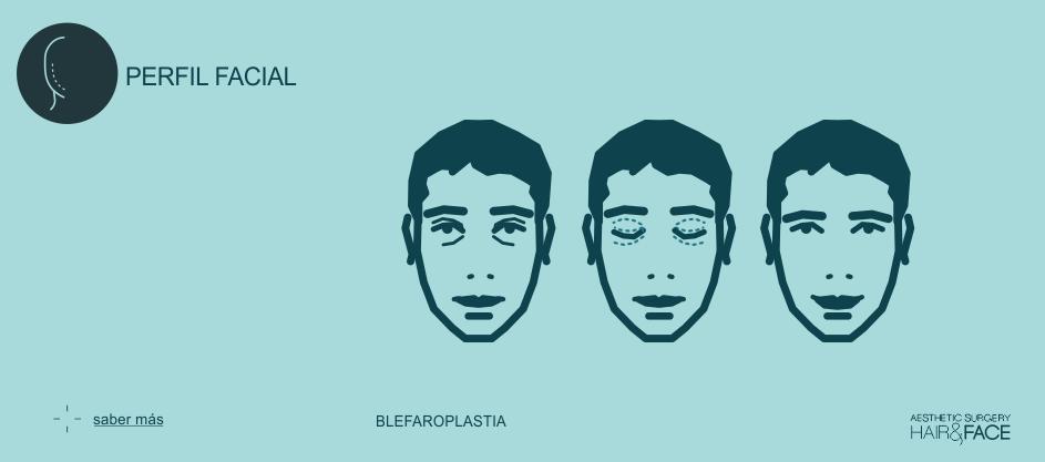 Saber más sobre la blefaroplastia...
