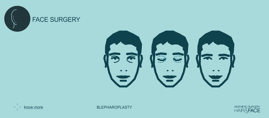 Know more about blepharoplasty