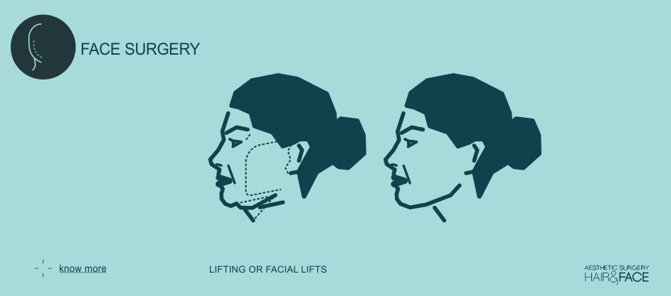 Know more about lifting or facial lifts
