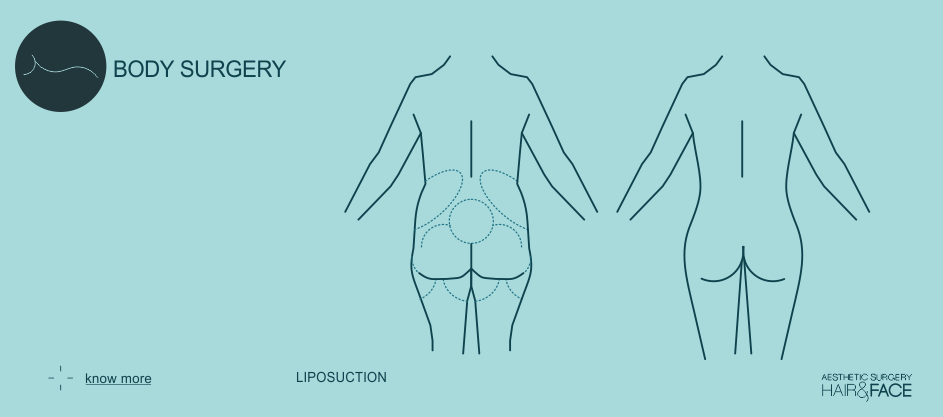 Know more about liposuction