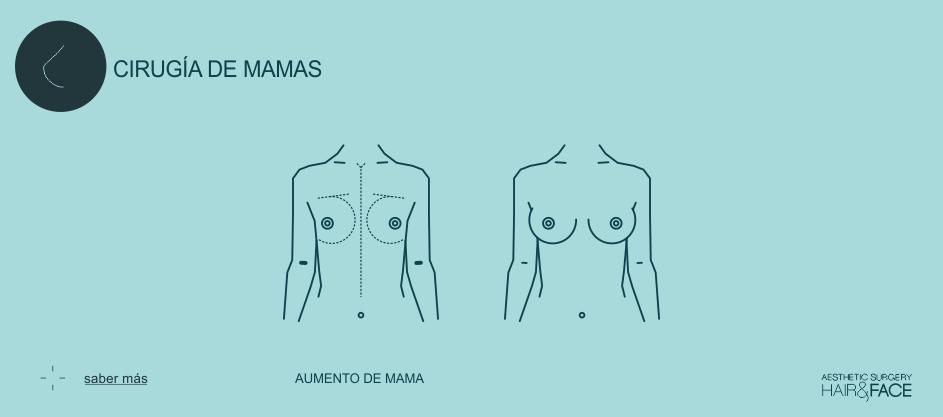 Saber más sobre implantes de mama...