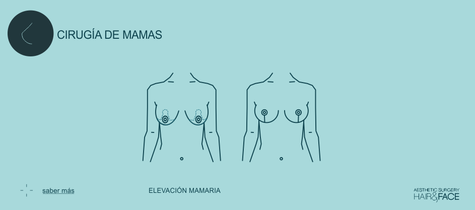 Saber más sobre elevación mamaria...
