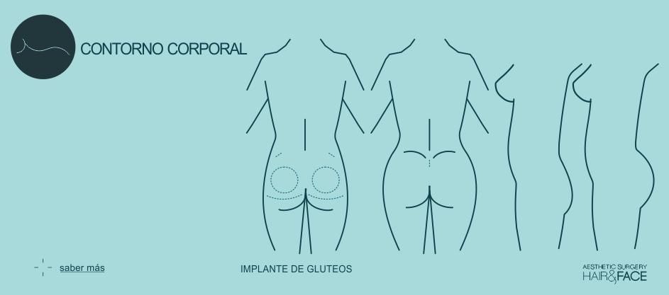 Saber más sobre implante de glúteos