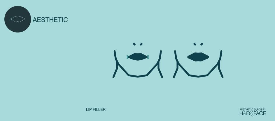 lips-main