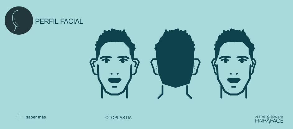 Saber más sobre la otoplastia...