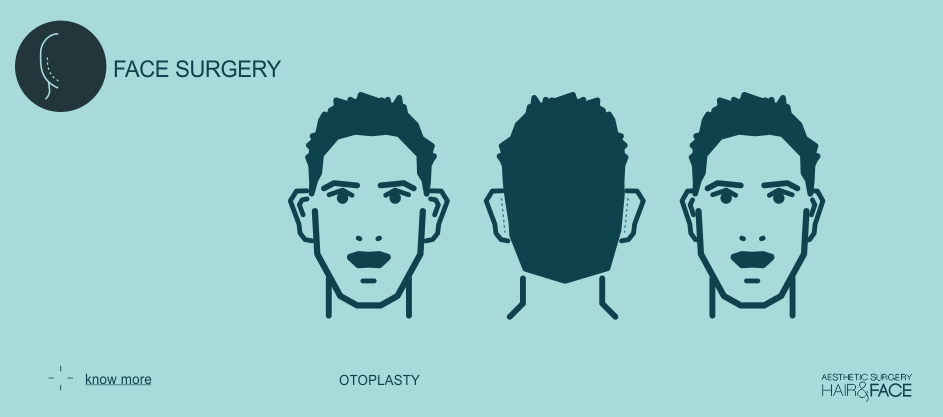 Know more about otoplasty