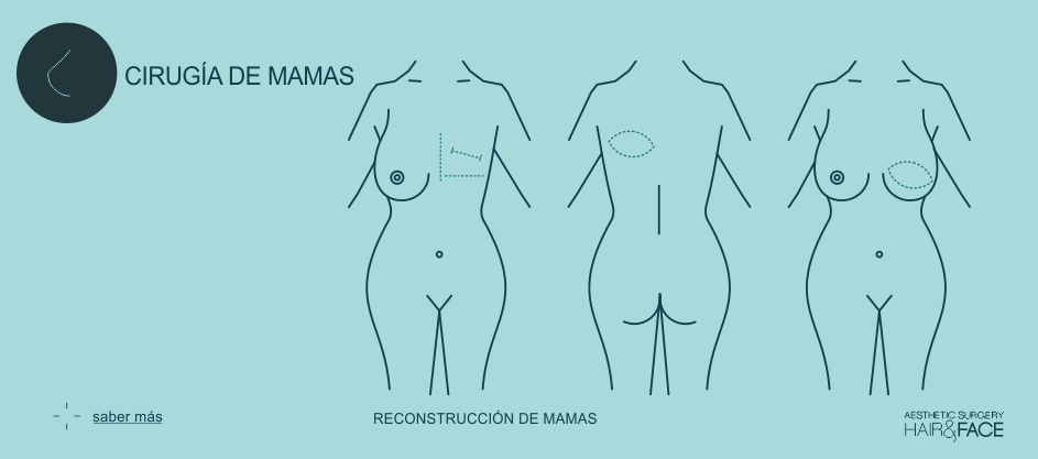 Saber más sobre reconstrucción de mama...