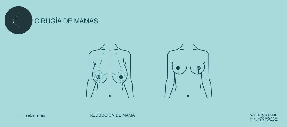 Saber más sobre reducción de mama...