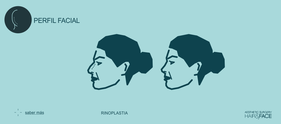 Saber más sobre la rinoplastia...