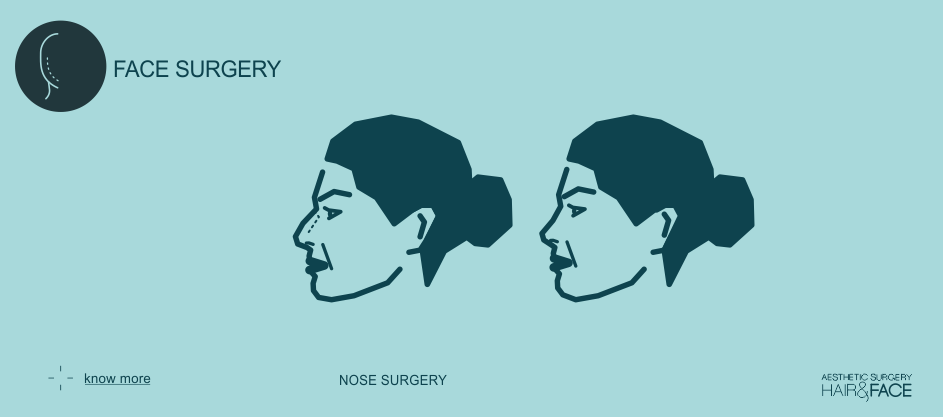 Know more about nose surgery