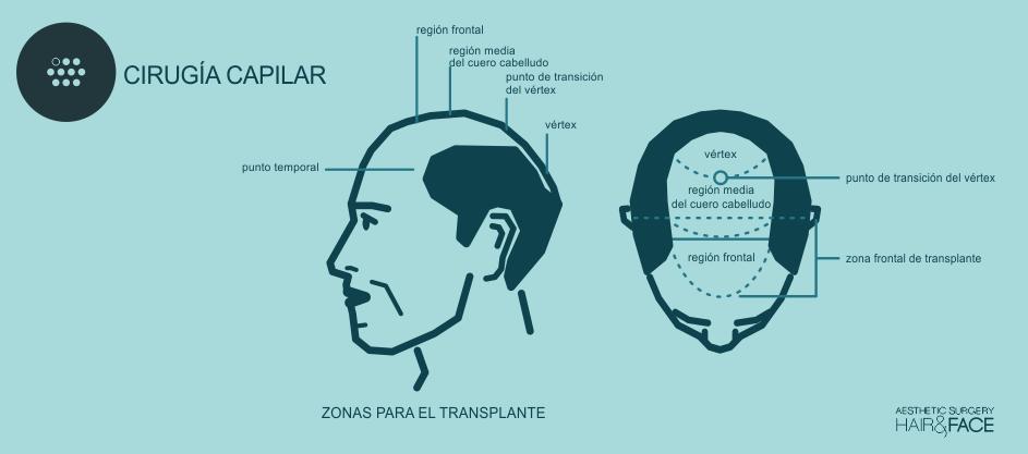 zona de transplante