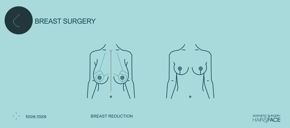 Know more about breast reduction...